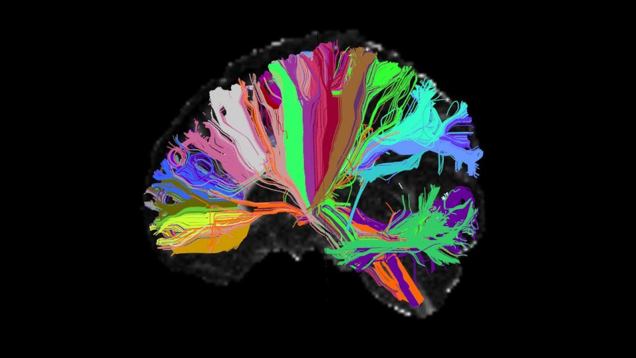 """Descubra como você pode """"deletar"""" coisas do seu cérebro"""