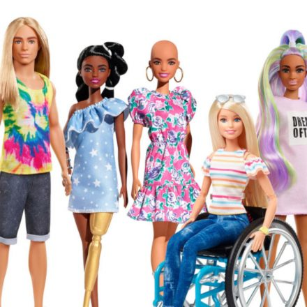 barbie-fashionista-vitiligo