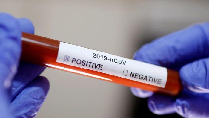 testes-coronavirus-bradesco-cocacola